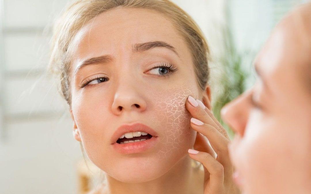 Cuidados com a pele ressecada